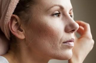 Aknenarben – wie entstehen, wie werden entfernt und wie vorbeugt?