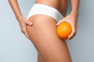 Cellulite – was ist das, wie sind Gründe dafür und was führt zu Entstehung?