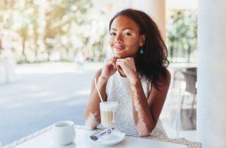 Vitiligo – was ist das? Symptome, Ursachen und Behandlung