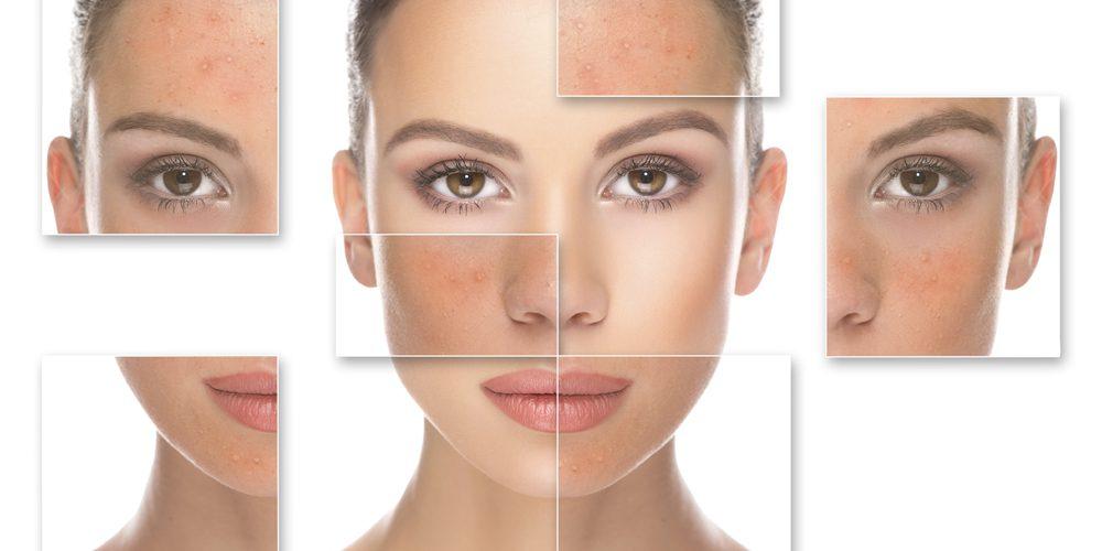 Pflege der empfindlichen Haut – Hauptprinzipien