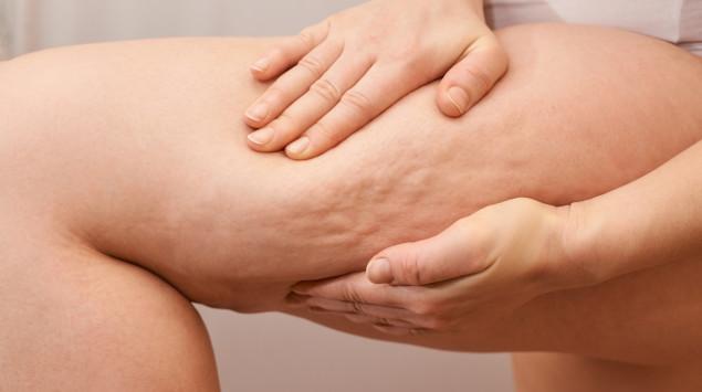 Cellulite behandeln? So geht's! Ursachen, Charakteristik und Behandlungen